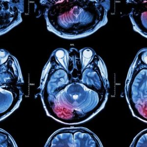Study Looks at Impact of Stroke Beyond Physical Disability